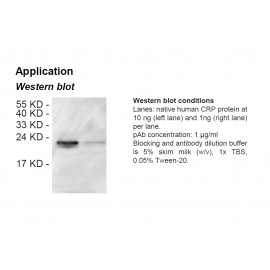 Rabbit anti-human C-reactive protein (CRP) polyclonal antibody