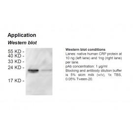 Rabbit anti-human C-reactive protein (CRP) polyclonal antibody