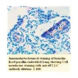4F2 LC Antibody