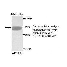 ADAM20 Antibody